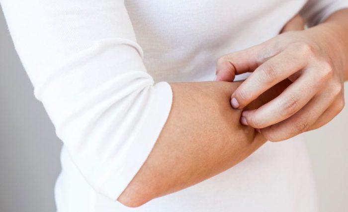 Раздражение рук - один из симптомов рожи